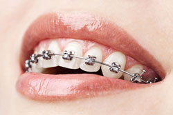 Braces in Canton, GA